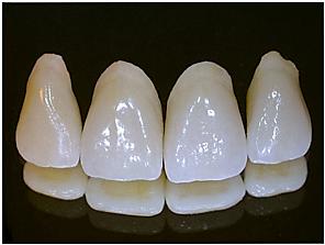 españa laboratorio dental en rosalejo – ignacio sanchez